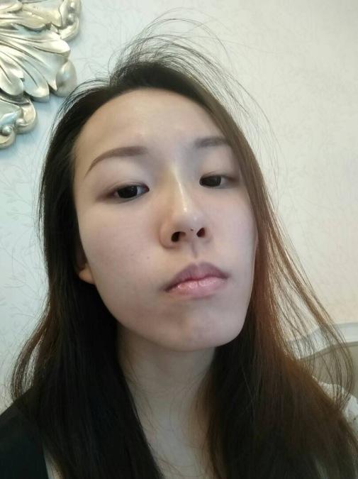 aft surgery 2