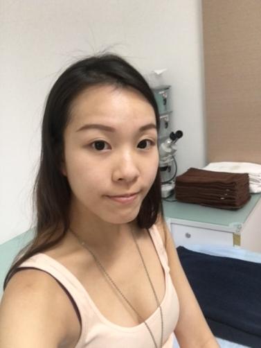 b4 surgery 2