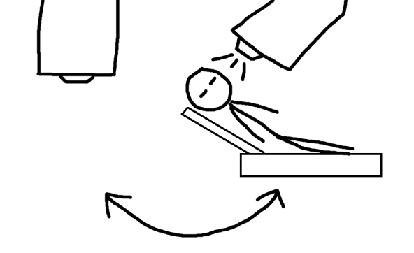 lasik drawing 1.png